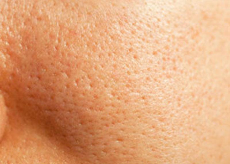 Grove poriën