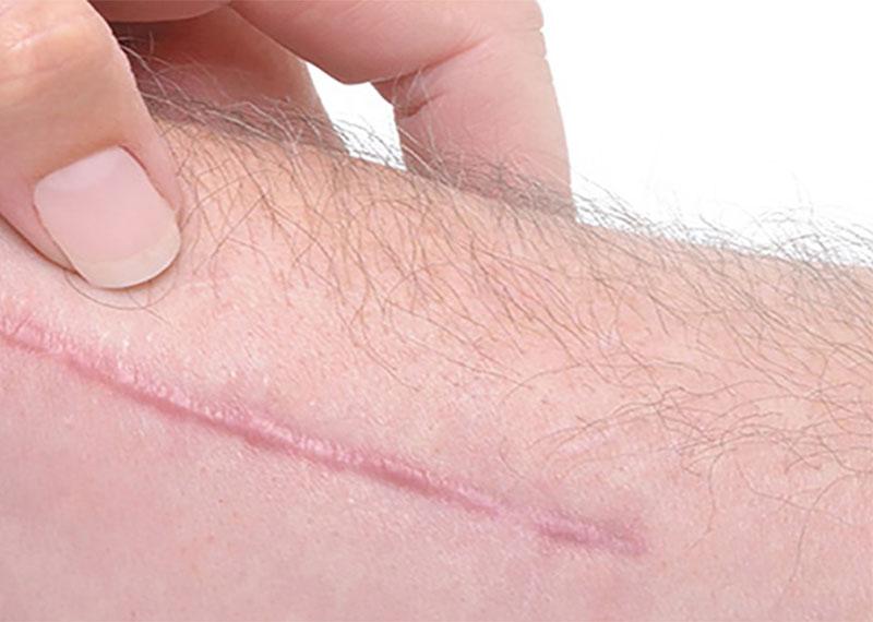 Hypertrofische littekens