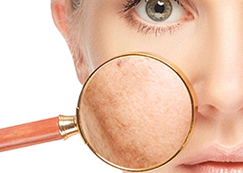 Post-inflammatoire hyperpigmentaties